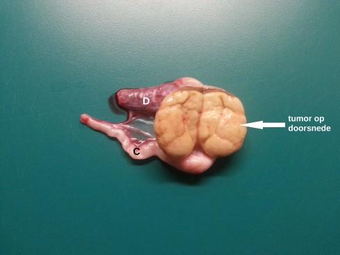tumor rug symptomen
